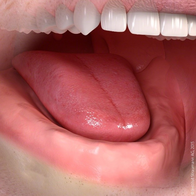 missing teeth lower jaw