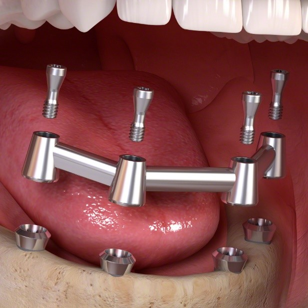 substructure for dental implant retained denture