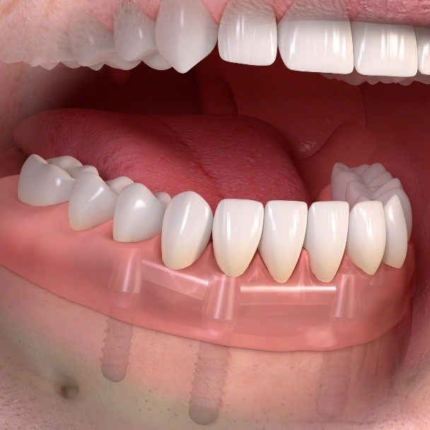 dental implant retained dentures